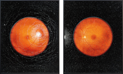 Self-portrait (with the help of optometrist) R and L from Retinal Shift