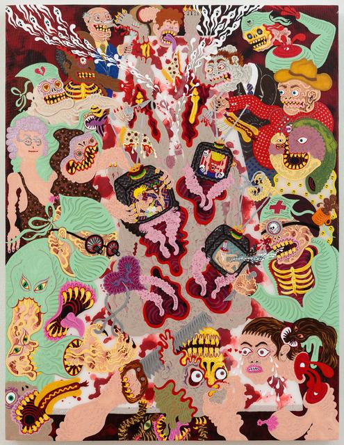 , 'Televisionectomy,' 2015, Gallery Poulsen
