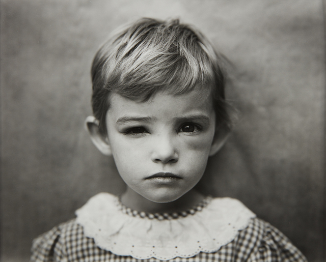 Sally Mann, 'Damaged Child', 1984, Phillips