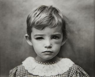 Sally Mann, 'Damaged Child,' 1984, Phillips: Photographs (April 2017)