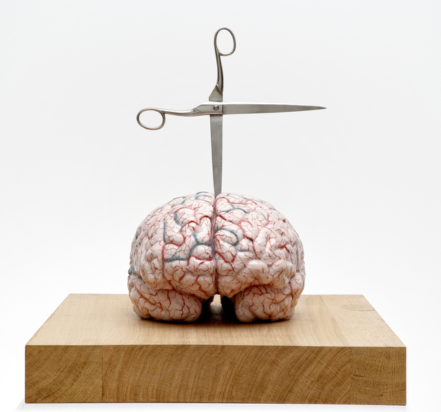 , 'Brain with Star,' 2012, Studio Trisorio