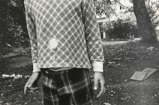 , 'Hole in Shirt,' 1974, Danziger Gallery