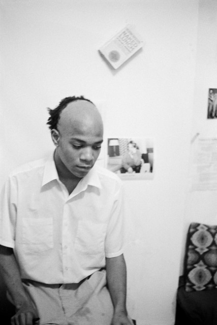 , 'Untitled #1 (Shaved head),' 1979-1980, Rokeby Gallery