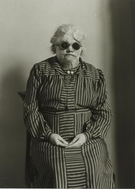 , 'Explosion Victim,' ca. 1930, Galerie Julian Sander