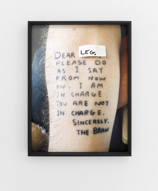 , 'Dear Leg,,' 2016, Louis 21