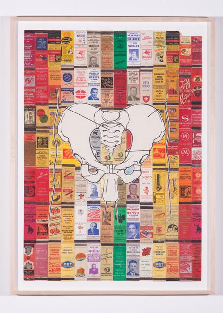 , 'Matching Set (Hot),' 1997-2010, Rosamund Felsen Gallery
