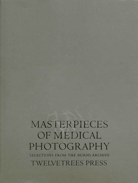 , 'Masterpieces of Medical Photography: Selections from The Burns Archive,' 1987, The Burns Archive & Press