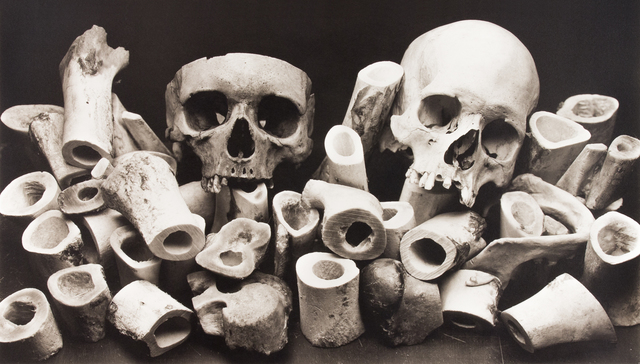 , 'Bone Forest,' New York-1980, Pace/MacGill Gallery