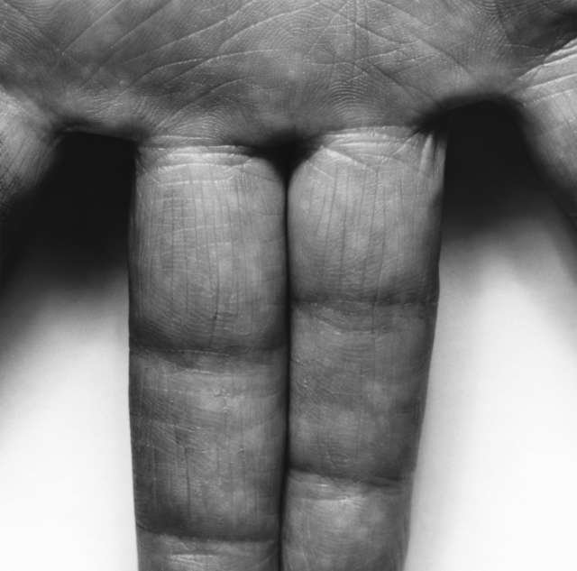 , 'Hand, Spread Fingers,' 1987, Galerie Nordenhake
