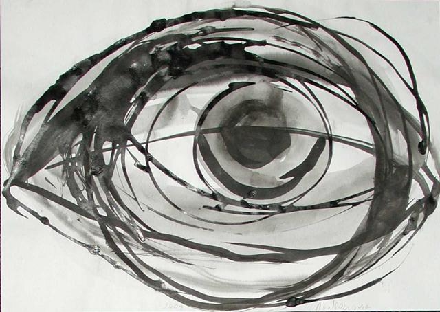 , 'Cataract Opaque Area Clouding Eye, pair no. 3,' 2002, Beck & Eggeling