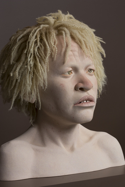 , 'AFRICAN TEEN WITH ALBINISM,' 2014, Traver Gallery