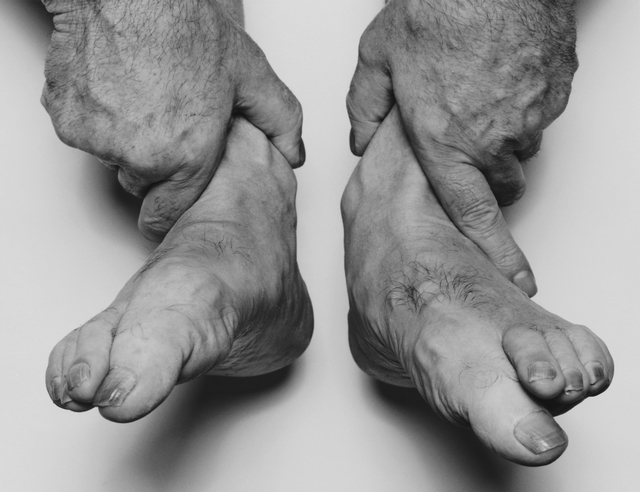 , 'Self Portrait, Hands Holding Feet,' 1985, Galerie Nordenhake