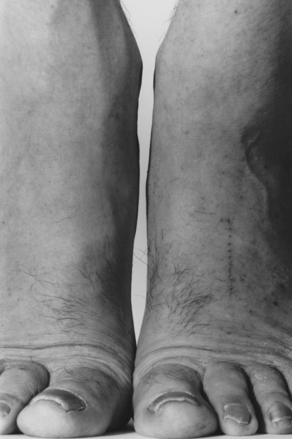 , 'Self Portrait, Feet, Frontal,' 1984, Galerie Nordenhake