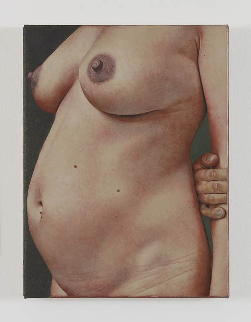 , 'Untitled (Pregnancy),' 2016, Gió Marconi
