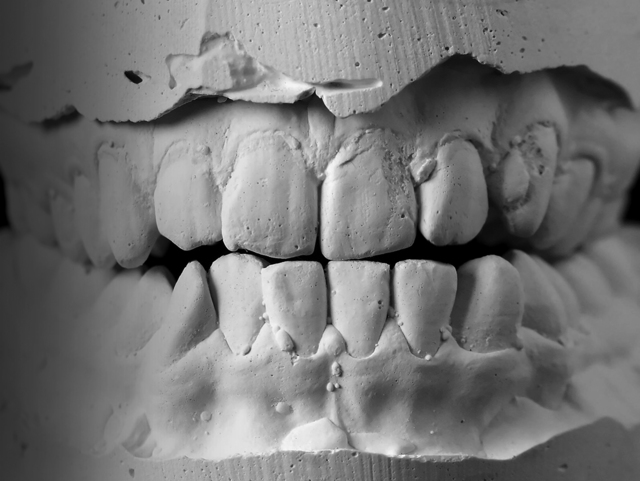 , 'Anesthesize,' 2017, Roger Katwijk