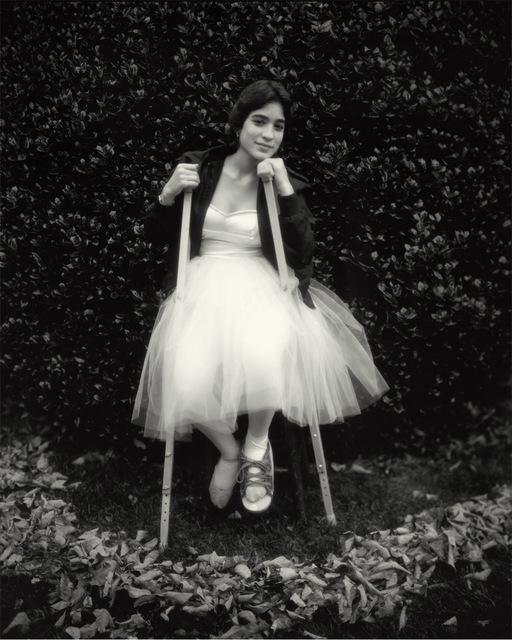 Sally Mann, 'Debbie's Broken Foot', 1983-1985, Gagosian