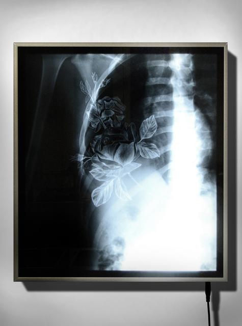 , 'X-Ray 2,' 2016, Officine dell'Immagine