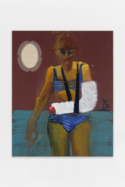 , 'Bras cassé,' , Galerie Bernard Jordan