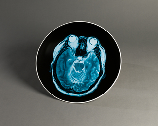 Brain Inflation on Plate, two plates