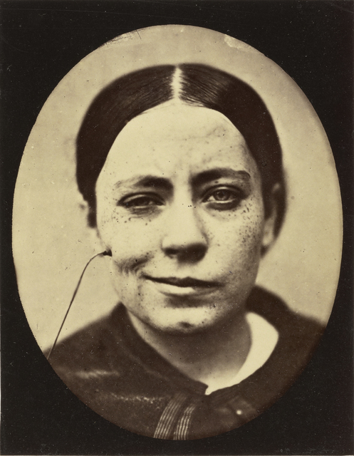 , 'Electro-Physiologie Photographique (Portrait of a Woman), Fig. 35,' 1876, J. Paul Getty Museum