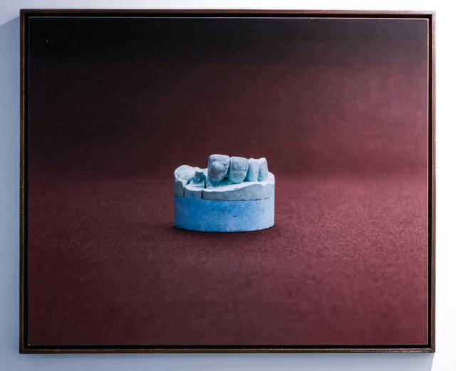 , 'Série corpo estranho I e II (Foreign body series I and II),' 2015, Boiler Galeria