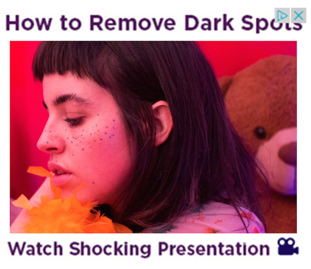 , 'How To Remove Dark Spots 