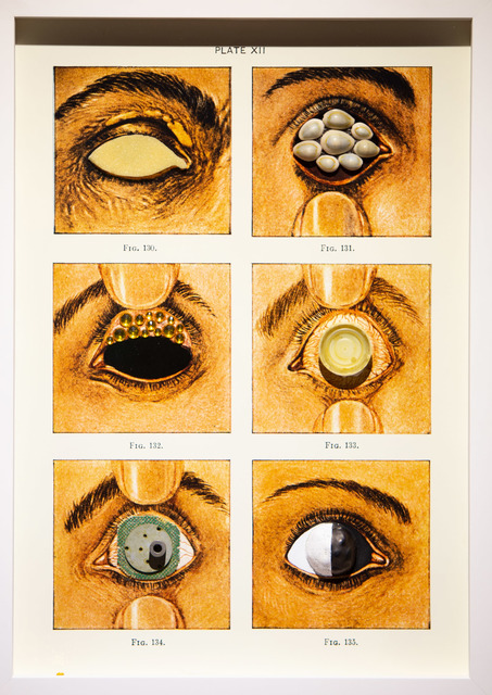 , 'FIG. 130-135, Diseases of the Eye,' 2017, Project for Empty Space