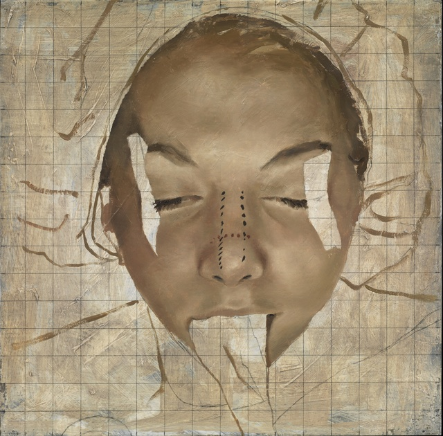 , 'Reduction Rhinoplasty,' 2011, Lazinc