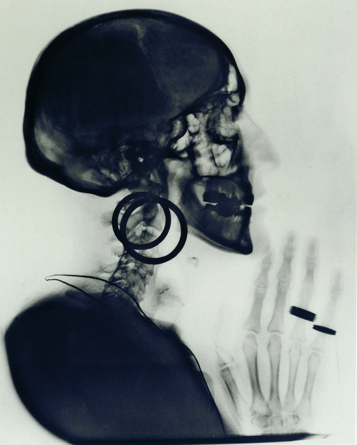 , 'X-Ray of Meret Oppenheim's Skull,' 1964, LEVY Galerie