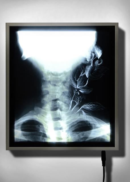 , 'X-Ray 3,' 2016, Officine dell'Immagine