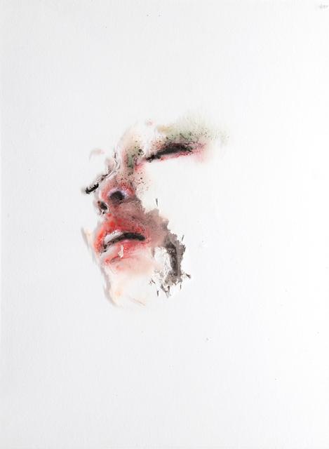 , 'Wounds XXXVI,' 2017, Lazinc