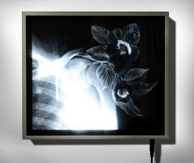 , 'X-Ray 4,' 2016, Officine dell'Immagine