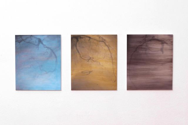 , 'Ossigeno (arterie),' 2015, Mazzoli