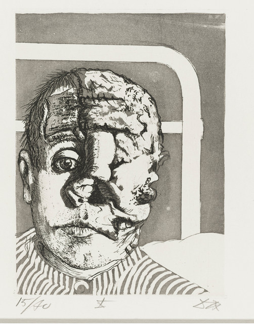 , 'Skin Graft (Transplantation) from the Portfolio War (Der Krieg),' 1924, Los Angeles County Museum of Art