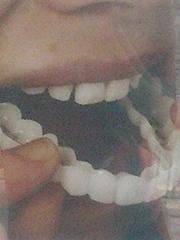 , 'Denture Number 4,' 2014, Blindspot Gallery