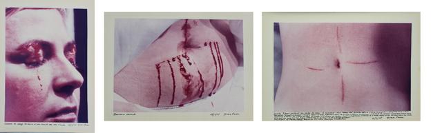 Gina Pane, 'Action Psyché (Essai)', 1974, OSART GALLERY