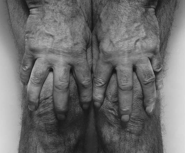 , 'Self Portrait, Hands Spread On Knees,' 1985, Galerie Nordenhake