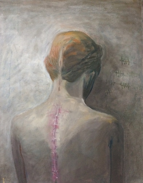 , 'Scar,' 2017, bo.lee gallery