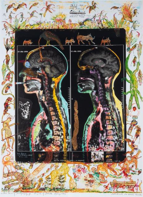 """Peter Beard, '[MRI-IRM] Another kind of photography for """"50 Years of Portraits""""', 1998, Photography, Iris print on larger sheet, West Chelsea Contemporary"""