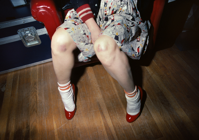, 'Muriel with bruised knees,' 1980, Casemore Kirkeby