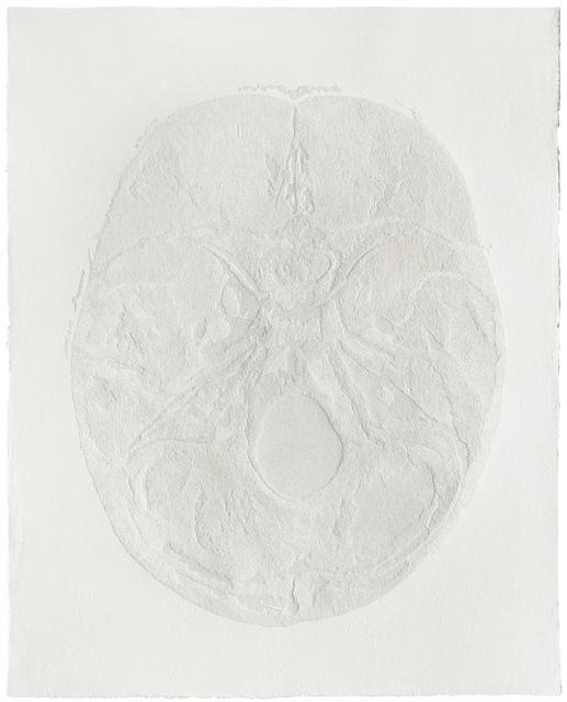 , '305,440 Pinpricks 305,440 孔,' 2015, Chambers Fine Art