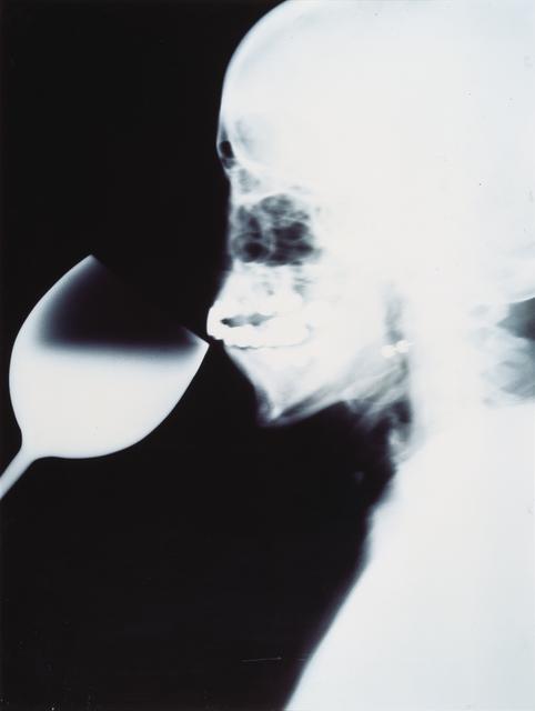 , 'X-Ray,' 1991, MCA Chicago