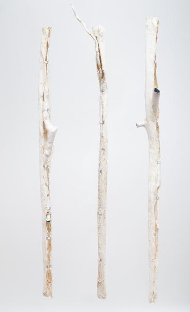 , 'Orthopädische Zustände,' 2015, Zilberman Gallery