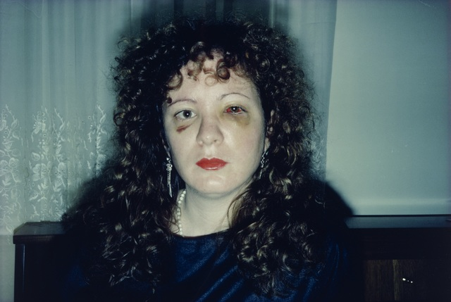 , 'Nan One Month After Being Battered,' 1984, The Museum of Modern Art