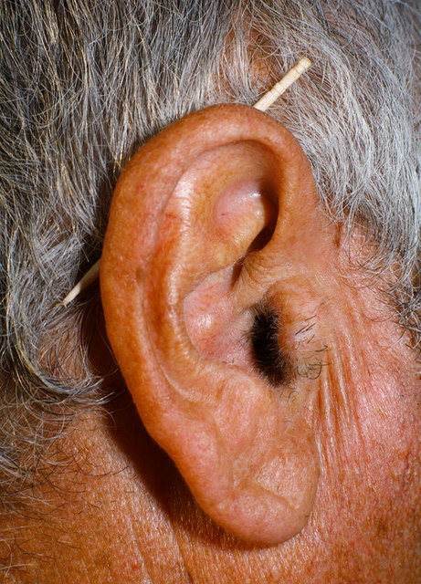 , 'Untitled (Ear),' 2011, TJ Boulting