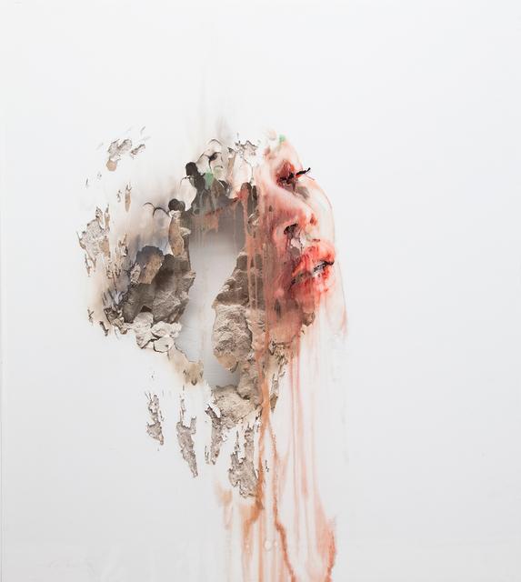 , 'Wounds III,' 2017, Lazinc