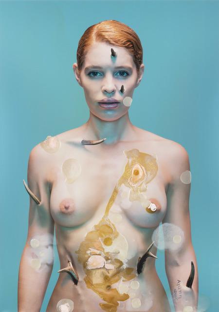 Doble & Strong, 'Lupus Vulgaris: Cornu Cutaneum Study #2', 2015, Nanda\Hobbs