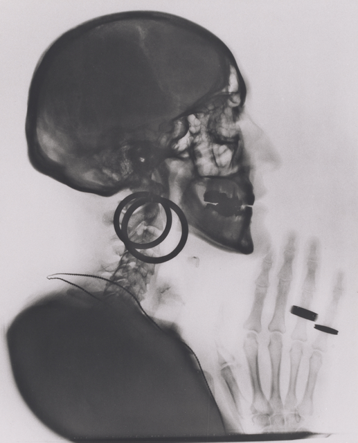 Meret Oppenheim, 'X-ray of My Skull', 1964; printed 1981, San Francisco Museum of Modern Art (SFMOMA)