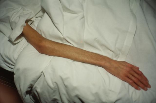 , 'Gilles' arm, Paris,' 1993, Galleria Pack