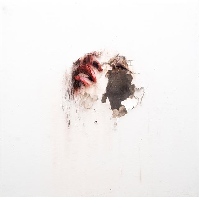 , 'Wounds XI,' 2017, Lazinc